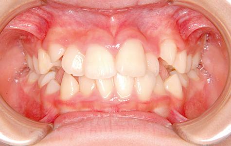 叢生(そうせい/でこぼこ) 治療前 正面(歯)