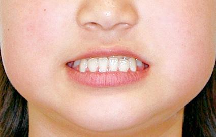 下顎前突(かがくぜんとつ/受け口) 治療前 正面(顔)