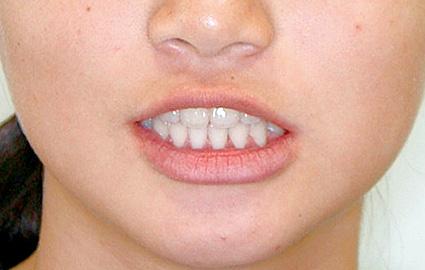 下顎前突(かがくぜんとつ/受け口) 治療後 正面(顔)