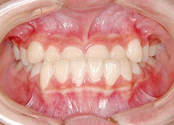 下顎前突(かがくぜんとつ/受け口) 治療前 正面(歯)