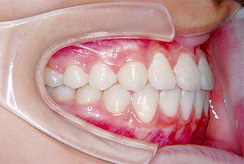 下顎前突(かがくぜんとつ/受け口) 治療後 側面(歯)