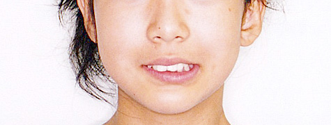 上顎前突(じょうがくぜんとつ/出っ歯) 治療前 正面(顔)