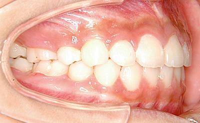 上顎前突(じょうがくぜんとつ/出っ歯) 治療後 側面(歯)