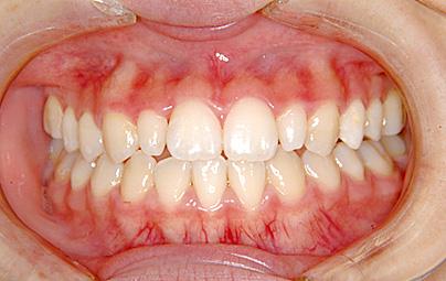 開咬(かいこう/オープンバイト) 治療後 正面(歯)