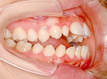 開咬(かいこう/オープンバイト) 治療前 側面(歯)