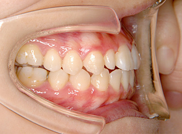 開咬(かいこう/オープンバイト) 治療後 側面(歯)