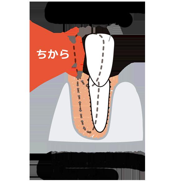 歯が動く仕組み02 治療によって歯根膜が伸縮します。
